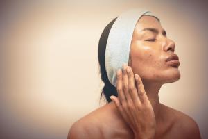7 dicas para quem tem pele oleosa por Dra. Larissa Viana