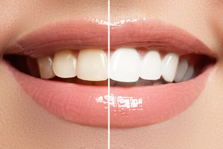 Mitos e verdades sobre o clareamento dental com Dr. Daniel Sene