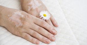 Vitiligo: tratamento com antibiótico por Dra. Denise Steiner