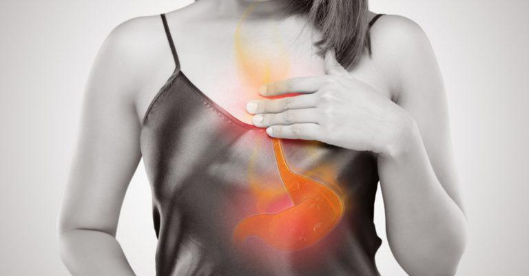 Azia e esofagite por Dr. Tércio Genzini