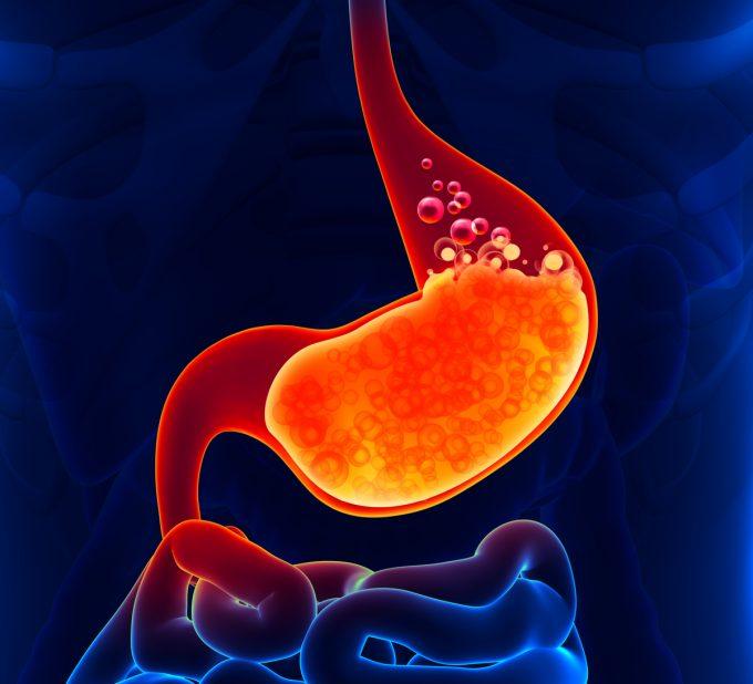 tv catia fonseca Cuide da sua saúde: saiba como evitar a gastrite! Ácido gastrico