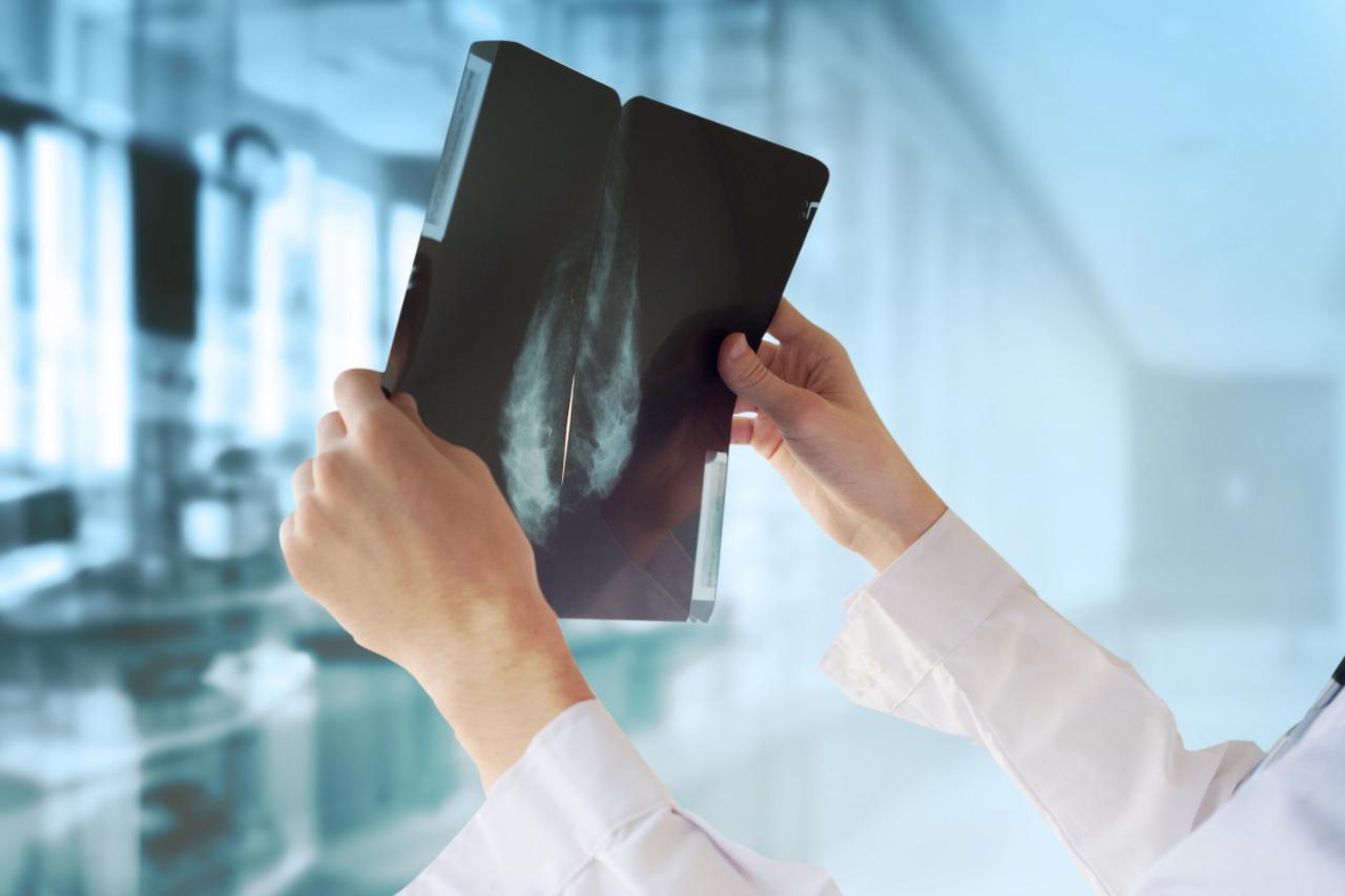 Tv Catia Fonseca - Outubro rosa: 12 perguntas e respostas que ajudam no diagnóstico precoce do câncer de mama - detecção