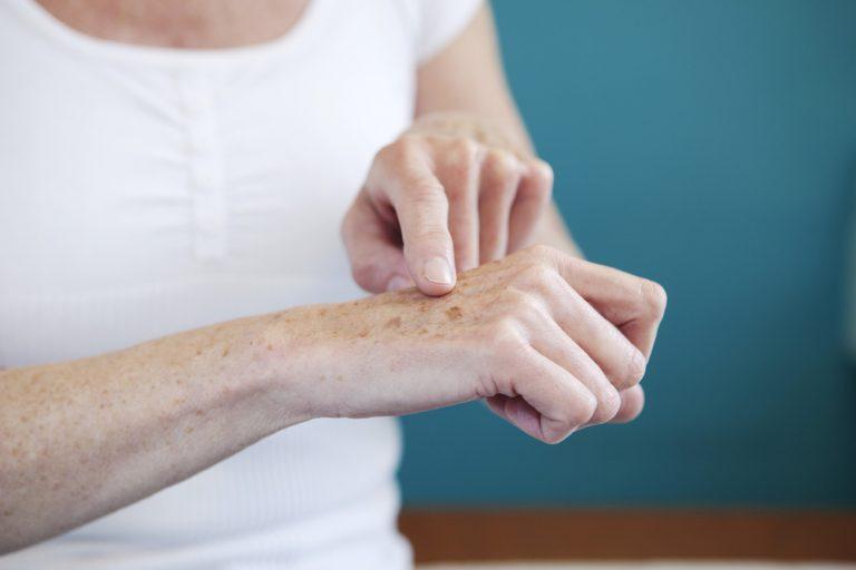 Problemas na pele causados pela poluição e radicais livres por Tatiana Freitas
