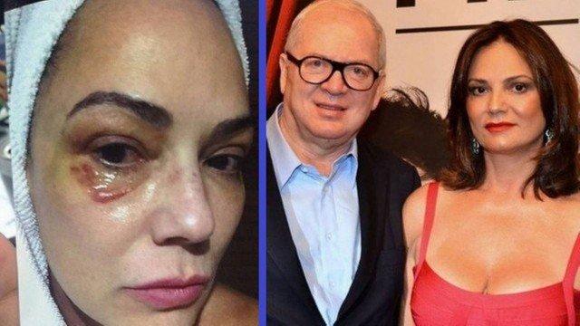 Após ter sido espancada, Luiza Brunet vence Lírio Parisotto na justiça e condenação é definida