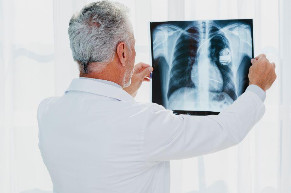 Você sabe o que é um laudo de raio-x?