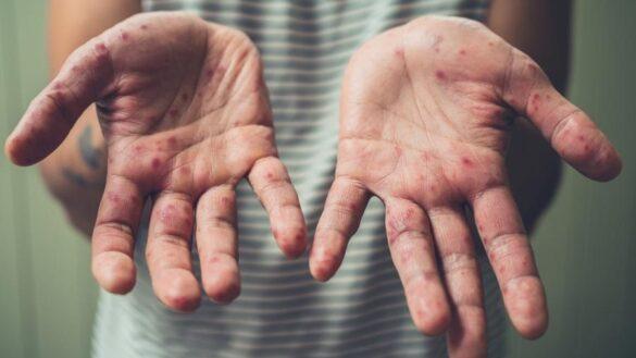 Tratamento do sarampo: imagem das mãos de uma pessoa com pintas vermelhas