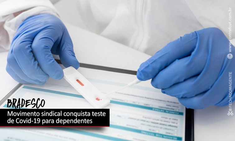 Dependentes de funcionários do Bradesco terão direito a teste de Covid-19